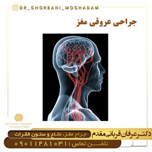 جراحی عروق مغزی