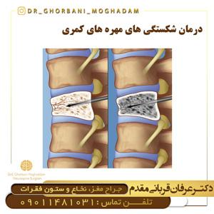 درمان شکستگی های مهره های کمری