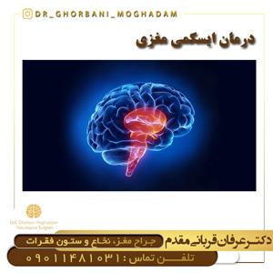 درمان ایسکمی مغزی