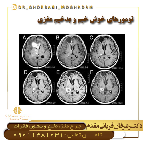 تومورهای خوش خیم و بدخیم مغزی