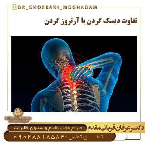 تفاوت دیسک گردن با آرتروز گردن