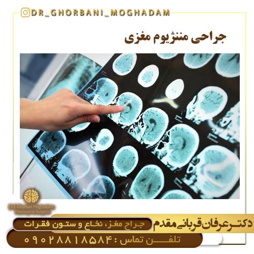 جراحی مننژیوم مغزی