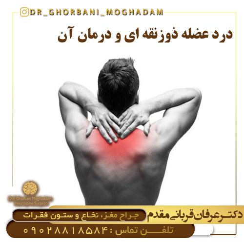 سندروم تراپزوئید